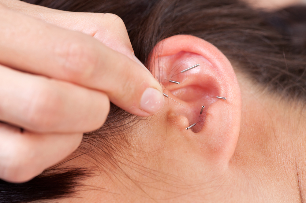 abnehmen-mit-akupunktur